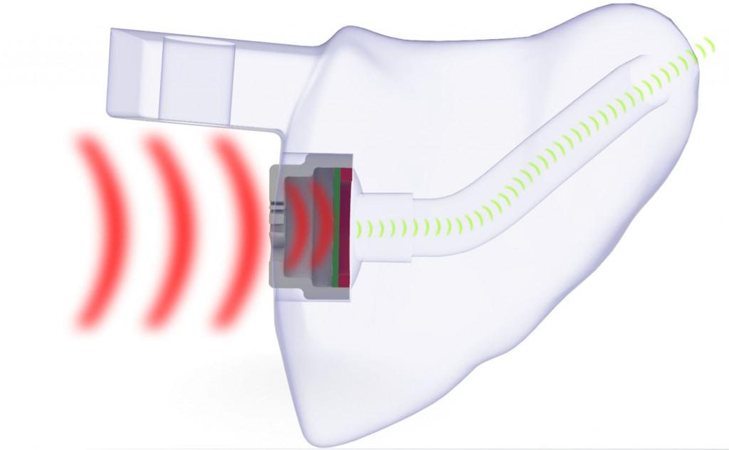 EARfoon BlueFit-X Gehörschutz-Otoplastik mit Membranfilter